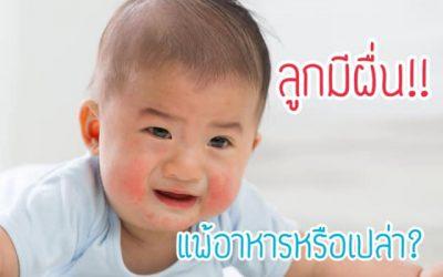 อาการ ผื่นขึ้น ของลูกเกิดจากอะไรได้บ้าง
